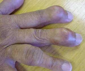 Biểu hiện ở tay của những bệnh nhân gút