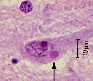Vi khuẩn bệnh dại