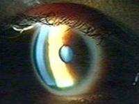 Kiểm tra mắt có thể giúp phát hiện các dấu hiệu của Alzheimer