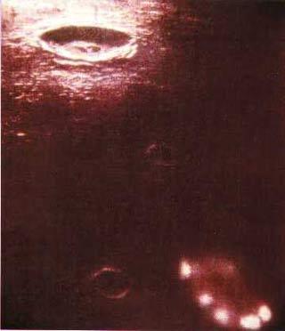 Vật thể lạ ngoài hành tinh
