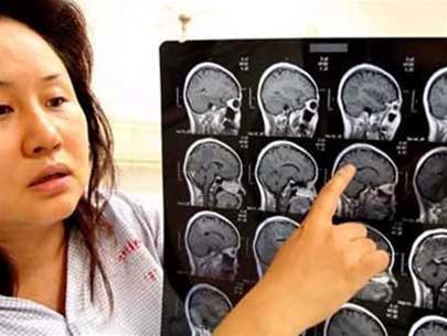 Một bệnh nhân với những con sán trong não (điểm trắng trên ảnh chụp cắt lớp)