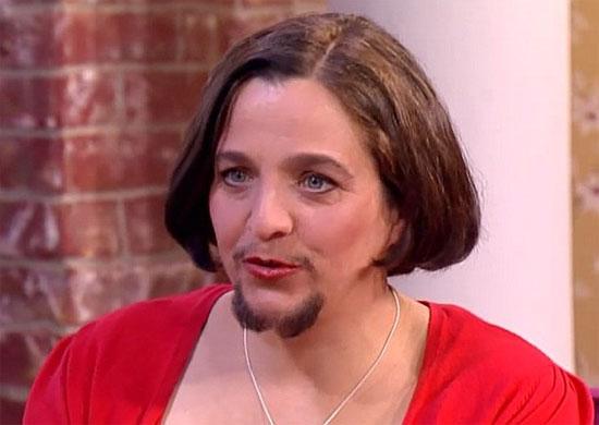 Mariam cho biết cô hiện cảm thấy tự tin hơn và hấp dẫn hơn với bộ râu trên mặt.