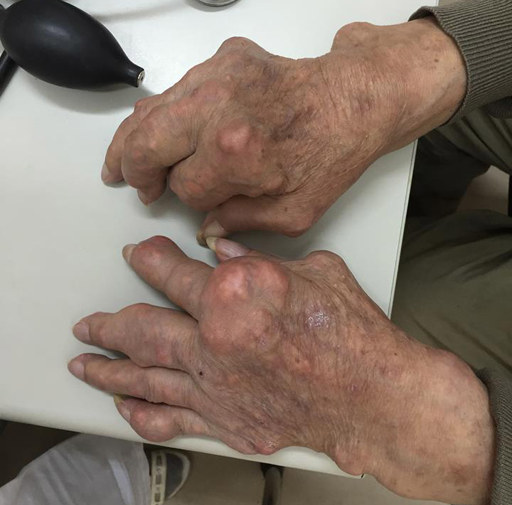 biến chứng nguy hiểm ở bệnh gout